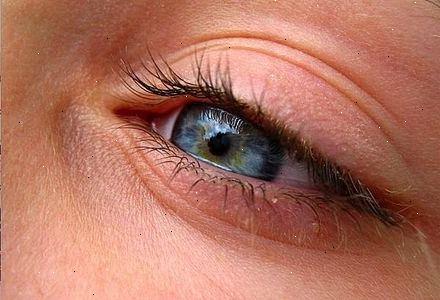 Hoe In Oog Symptomen Van Hoge Bloeddruk Te Spotten E2h